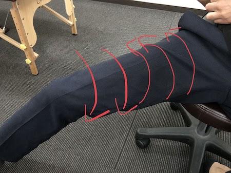 股関節に皮膚の矯正2