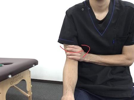 腕の皮膚の矯正2